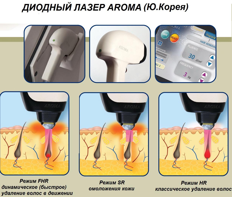 Диодные лазеры для лазерной эпиляции